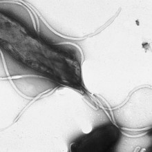 Electron micrograph of H. pylori possessing multiple flagella (negative staining)