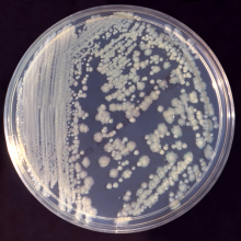 Colonies of Enterobacter cloacae bacteria on Tryptic Soy Broth agar plate. Obtained from the CDC Public Health Image Library; image credit: CDC(PHIL #6552), 1983.