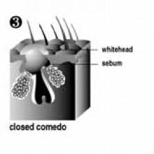 closed comedone - sebum build-up