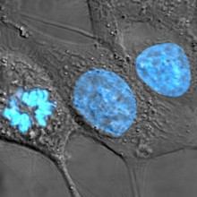 HeLa cells stained with Hoechst 33258 stain.