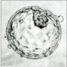 Image of human blastocyst showing Inner Cell Mass (top, right) and Trophectoderm.