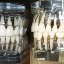 Models of human teeth as they exist within the alveolar bone.