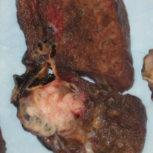 A lung carcinoma; the cancerous lesion appears as the white mass at the lung hilum.
