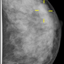 Mammogram showing breast cancer