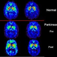 PET scan of Parkinson's patient