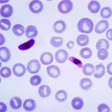 This photomicrograph of a blood smear contains a macro- and microgametocyte of the Plasmodium falciparum parasite. Both macro- and microgametocytes are products of the erythrocytic life cycle. Within a few minutes after the Anopheles sp. vector...