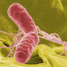 False colour SEM of Salmonella bacteria