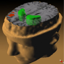 A PET scan, illustrating of Schizophrenia's effect on the brain