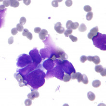 Small cell lung cancer cells