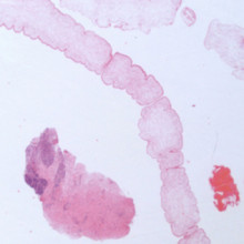 Unsegmented ribbon of worm next to fragments of inflamed brain