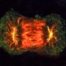 Figure 1: A tumour is formed when cells divide out of control.