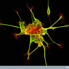 New Nerve Cells