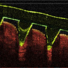 Microneedles pierce skin painlessly to deliver drugs and even remove blood samples for analysis.