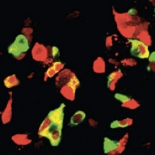 Generating different types of hormone secreting cells from human tissue sources could lead to new treatments for diabetes.