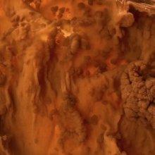 Familial polyposis / Ca sigmoid colon