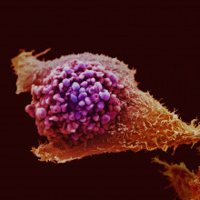 Prostate cancer cell imaged using electron microscopy and coloured artificially