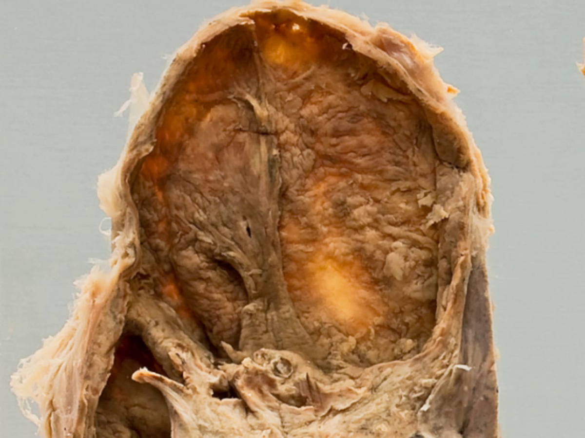 Infectious disease: Lung/Intestine/Larynx: Tuberculosis